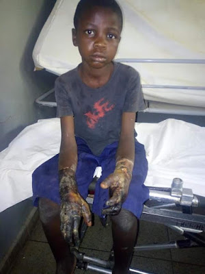Photos: 12-year-old boy