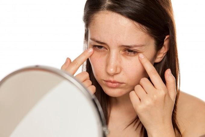 Dark circles under eyes|Reasons| Home treatment & Cure health|