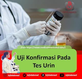 Uji Konfirmasi Pada Tes Urin
