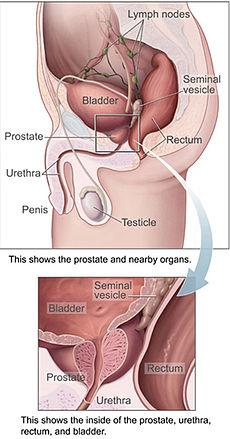 Makanan-Makanan Pencegah Kanker Prostat