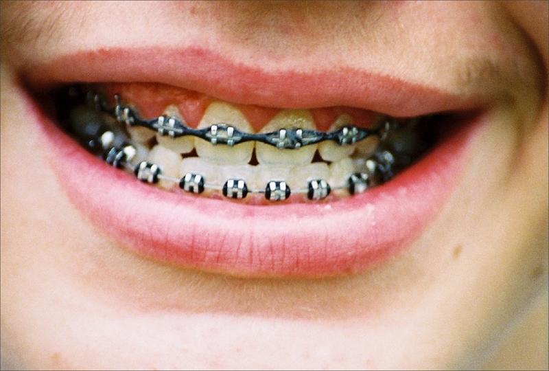 choroby-jamy-ustnej