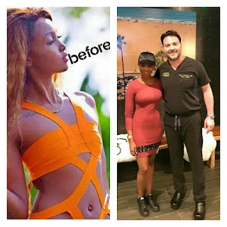 Ex-Big Brother Africa Star, Monroe Suffers Complications After Enlargement Surgery (Photos)