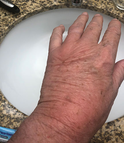 Lobster hands, aka Resident Astronomer, display insect bite swollen hand(s) (Source: Palmia Observatory)