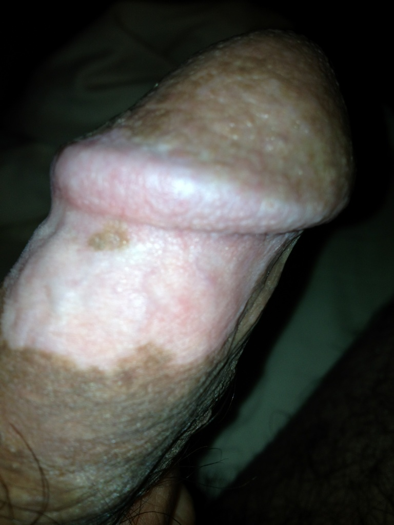 Vitiligo Penis 99