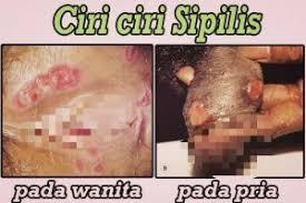 obat sipilis laten paling ampuh di apotik