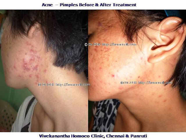 black heads treatment  white head chennai tamil nadu