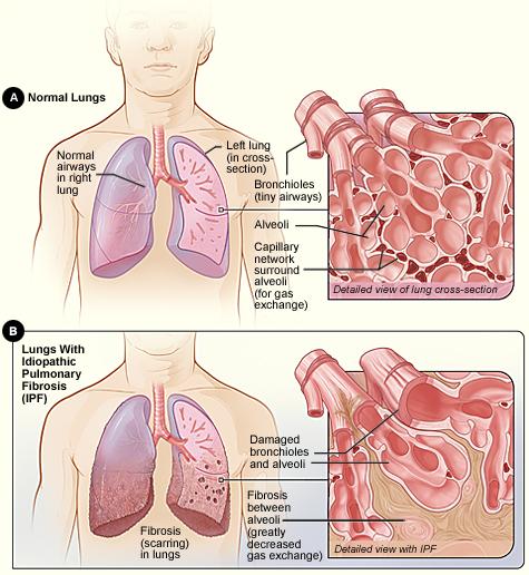 difference entre pneumonie et bronchite