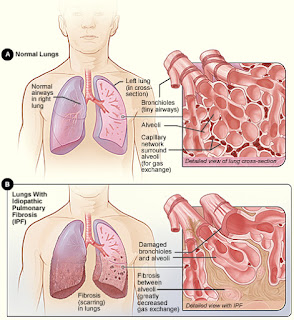 bronchite asthamatiforme chez les enfant