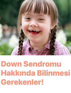 Down Sendromu Hakkında Bilinmesi Gerekenler?