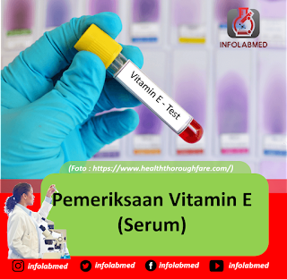 Pemeriksaan vitamin E serum