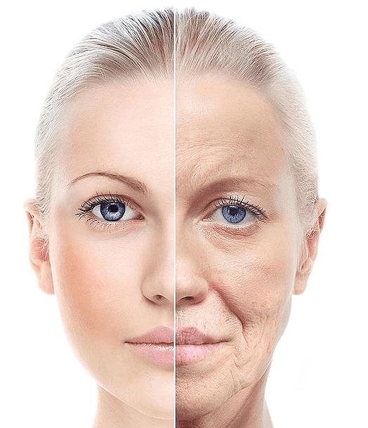 أسباب ترهل الوجه وبعض العلاجات المنزلية