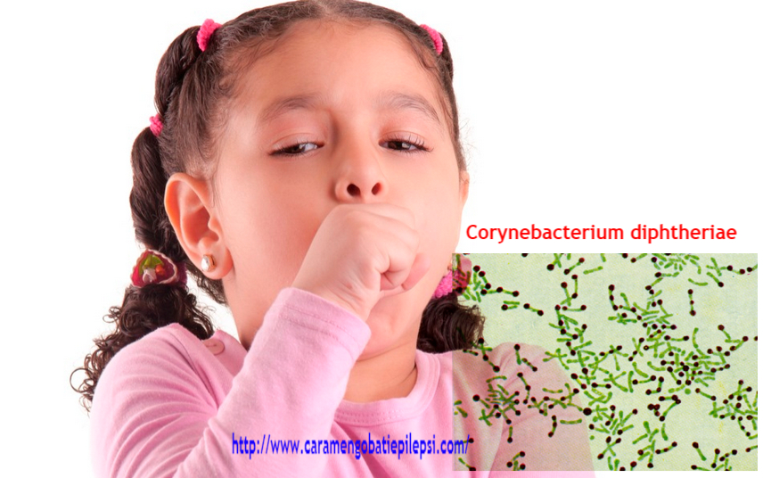 Penyebab Utama Difteri