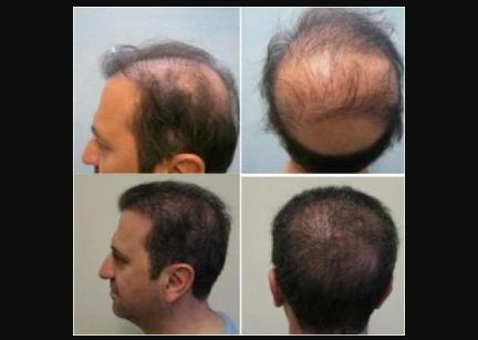 7 Bahan Alami Untuk Melebatkan Rambut