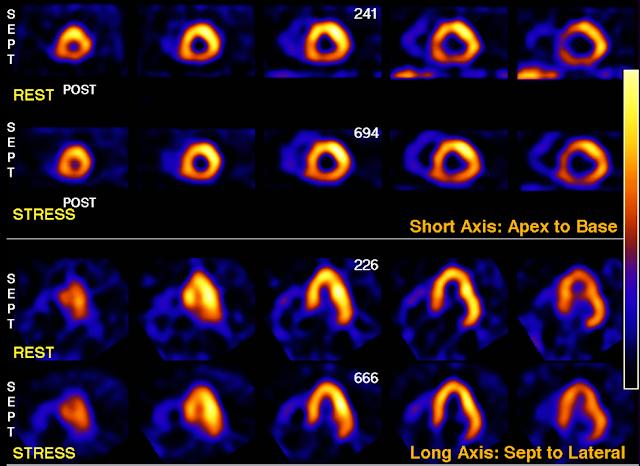 Nuclear Cardiology case
