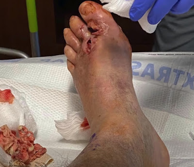 Should the Diabetic Foot be Amputated?