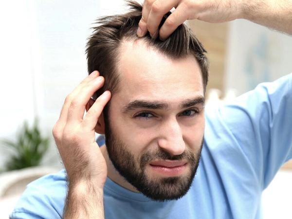 hair loss prevention plan