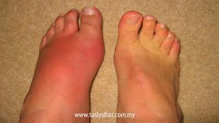 petanda gout