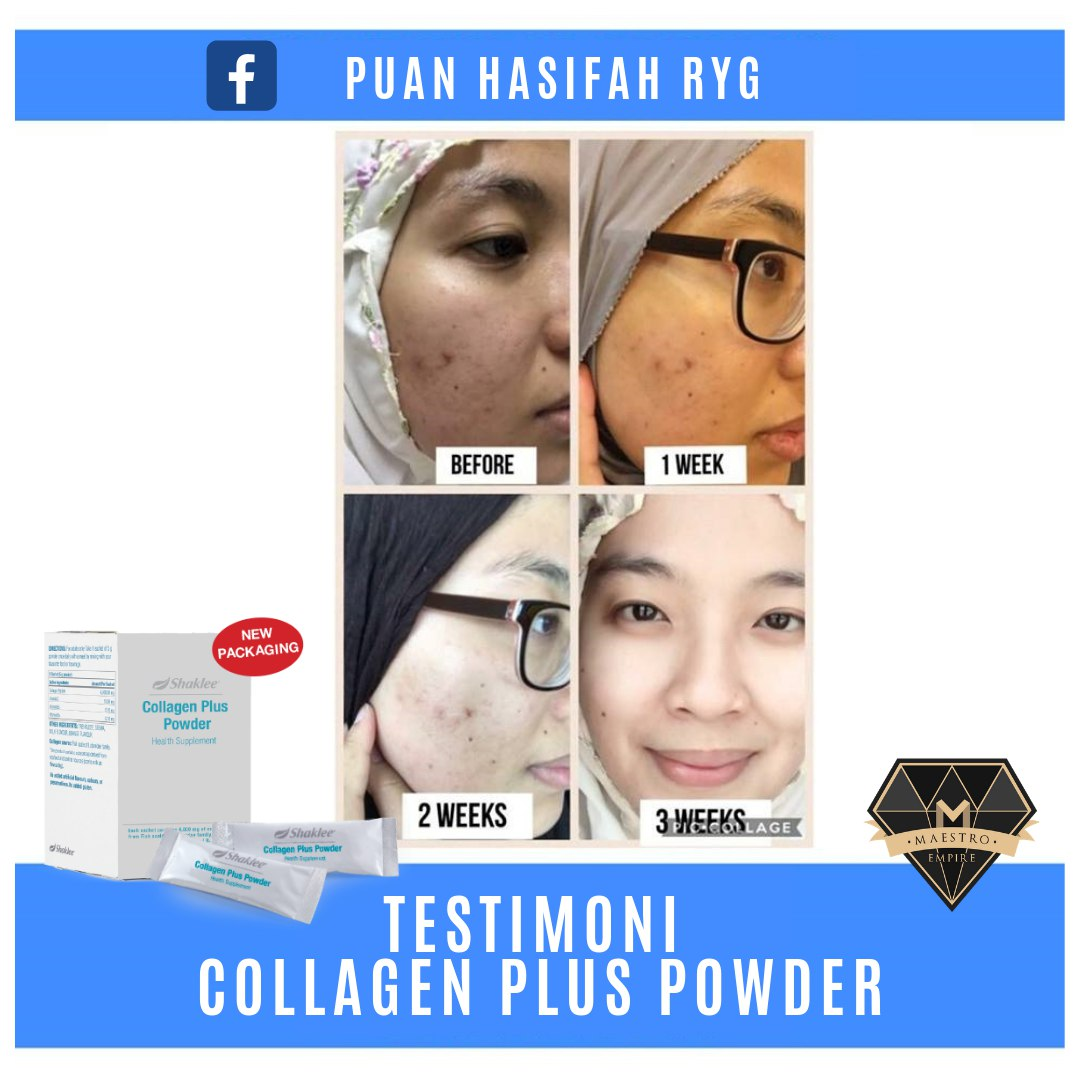testimoni set cantik shaklee set cantik bajet shaklee set cantik shaklee new packaging harga set kecantikan shaklee set kulit cantik shaklee bajet Set Cantik Shaklee [Fungsi, Keistimewaan dan Harga, collagen shaklee tak berkesan  cara makan collagen shaklee  harga collagen shaklee  harga collagen shaklee 2020  collagen plus powder shaklee  testimoni collagen plus vit e  pengalaman makan collagen shaklee  testimoni esp shaklee