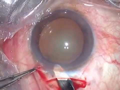 Steps of small incision cataract surgery (SICS)