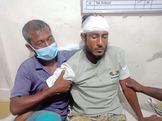 মোংলায় প্রতিপক্ষ সন্ত্রাসীদের হামলায় দুই সহদর আহত