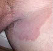 Obat di apotek paling ampuh untuk gatal di kemaluan muncul ruam merah