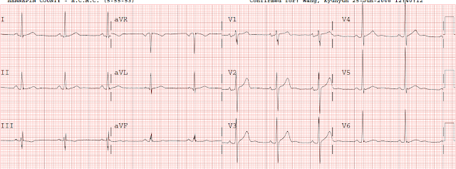 Dr  Smith's ECG Blog: Looking for a wall motion abnormality