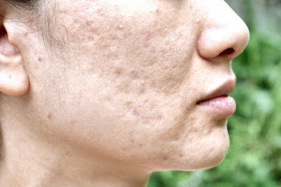 Remove Pimple Scars