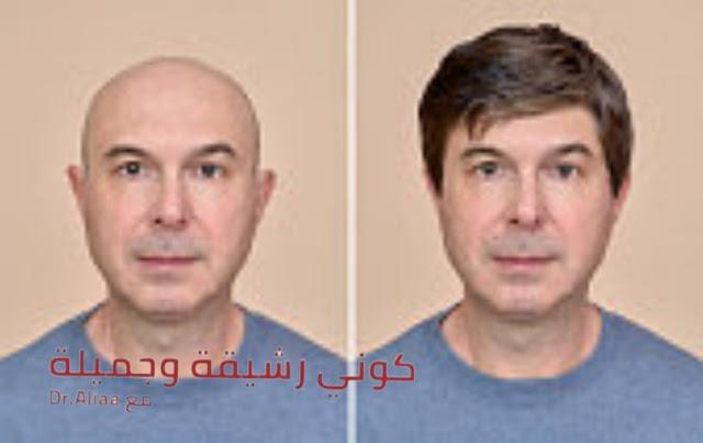 """طرق زراعة الشعر جراحيا""""     هل هي عملية جراحية صعبة ؟؟"""