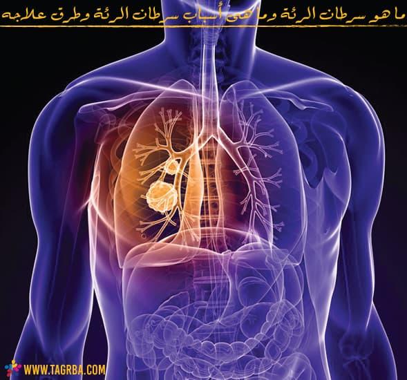 ما هو سرطان الرئة وأعراضه وما هى أسباب سرطان الرئة وطرق علاجه