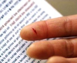 Rahasia Dibalik Menghisap Darah Pada Jari Yang Terluka