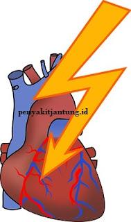 penyebab dan gejala penyakit serangan jantung