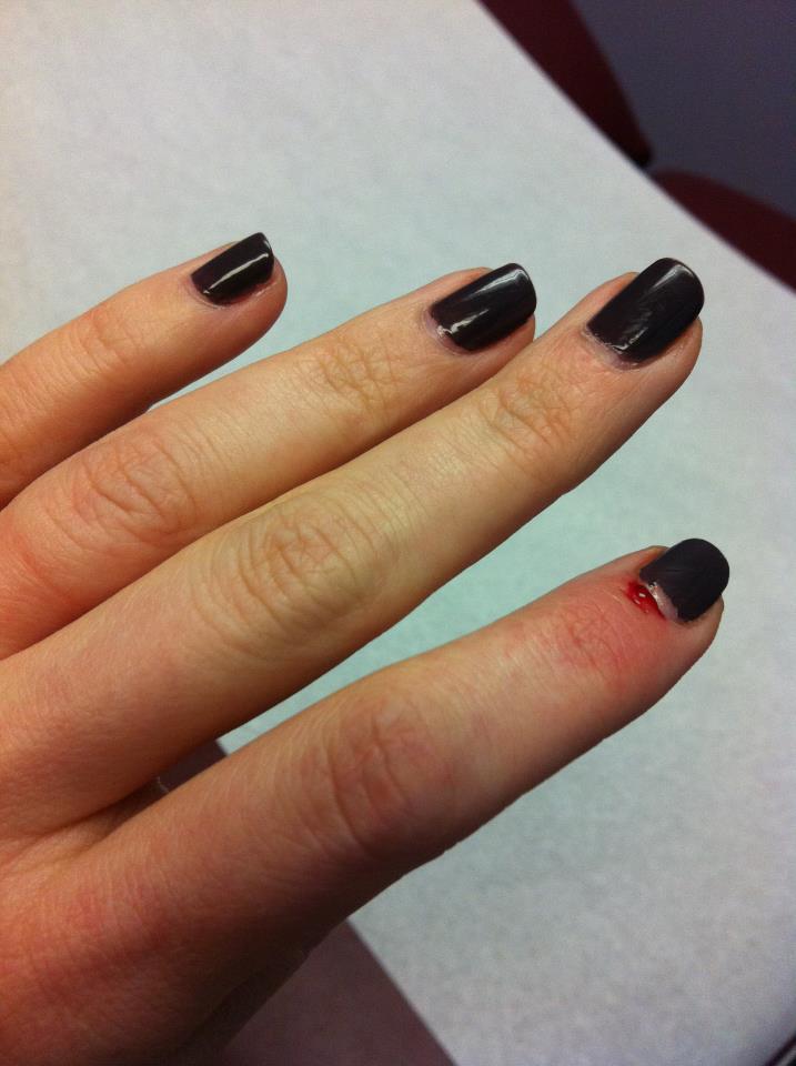 Werdyab Blog: A Blogging Injury