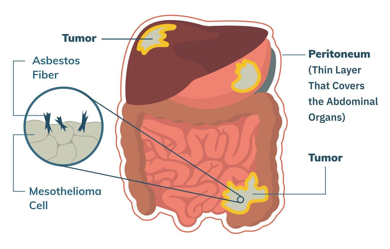 Mesothelioma of Peritoneum