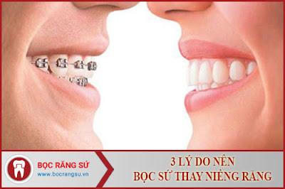 3 lý do nên bọc sứ thay vì niềng răng -1