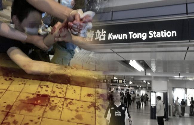 Pria Terluka Berlumuran Darah Setelah disayat dengan Pisau Oleh Oknum disekitar Stasiun MTR Kwun Tong