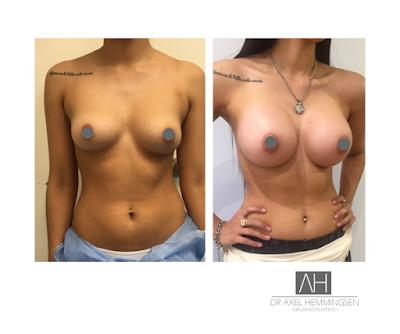 El tamaño ideal de prótesis mamarias