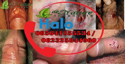 Penyebab Penyakit Sifilis Atau Raja Singa