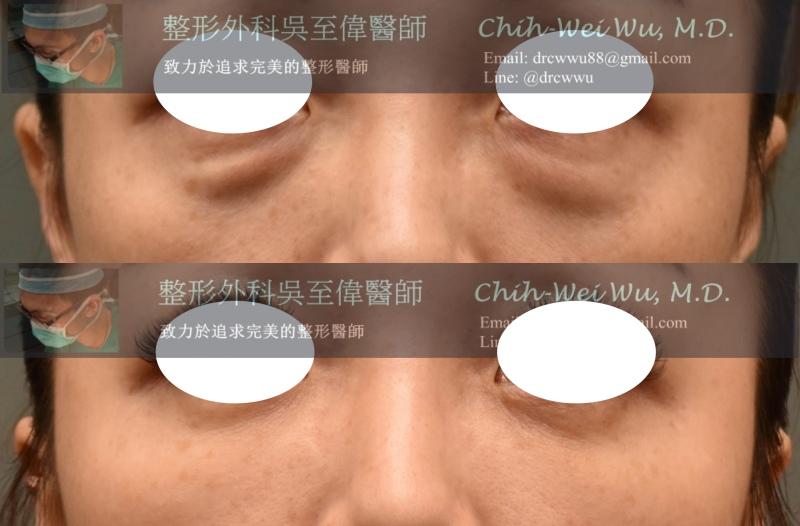 二次眼袋修復童顏針硬塊取出