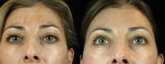 Masque à l'aloe vera pour réduire les taches solaires sur le visage et les mains