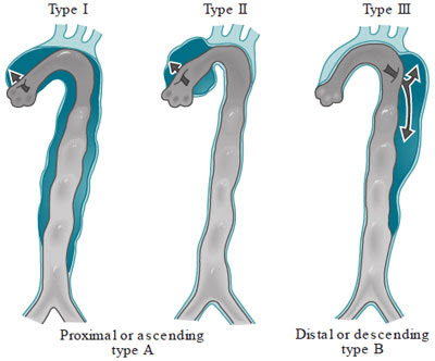 classification of aortic dissections