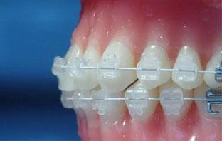 افضل دكتور تقويم اسنان في الرياض