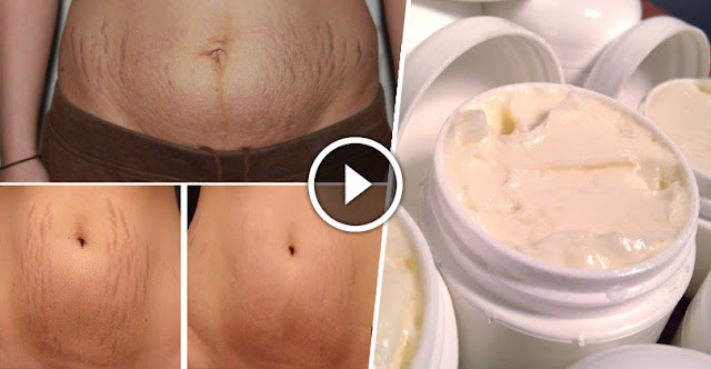 How To Remove Stretch Marks Within 12 Hour!