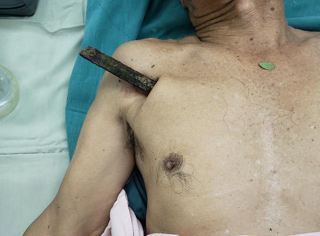 Đi xe đạp bị ngã, cụ ông bị cây gỗ dài 30cm đâm xuyên phổi