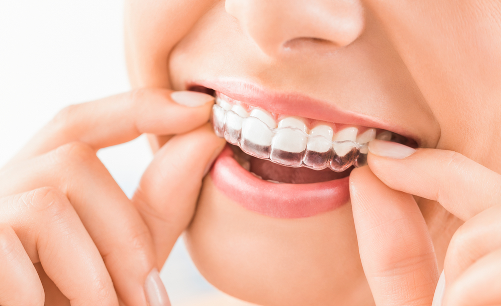 What Does How Long Do Braces Take Do?