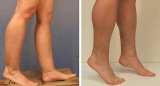 http://www.liposuctiontummytuck.in/legs-ankles.html