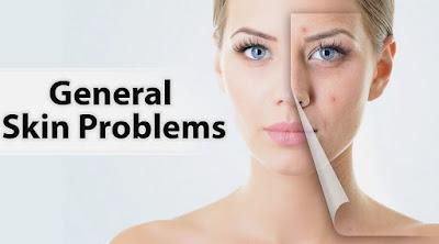 4 Cara Mengetahui Jenis Kulit Wajah dan Ciri – Cirinya