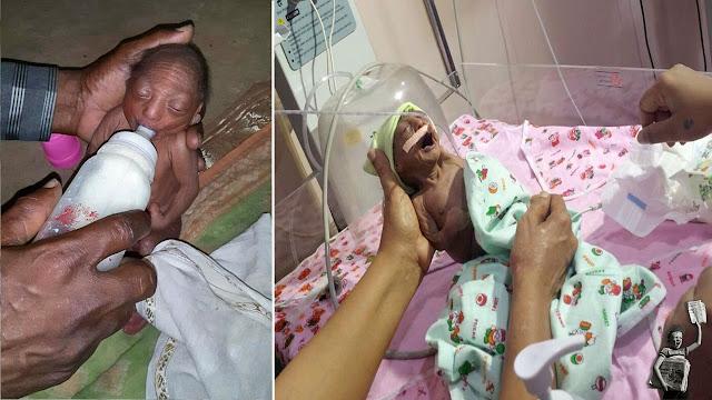 Двухнедельную девочку отвергли родители из-за её необычной внешности, а дедушка взял к себе и заботливо кормил с ложечки