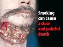 The Health Effect Of Smoking