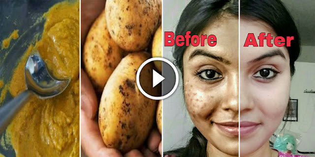 How To Remove Dark Spots Of Face In 7 Days!