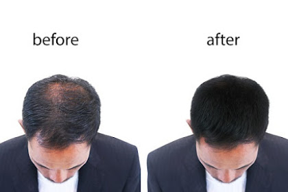 The benefits of Propecia and Minoxidil are effective for treating and stopping hair loss